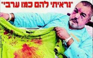 Chileno golpeado en Israel pudo ser víctima de racismo y/o fanatismo judío