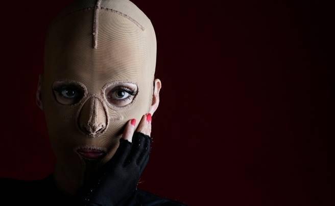 """Luego de dos años, la """"mujer sin rostro"""" abandonó su máscara"""
