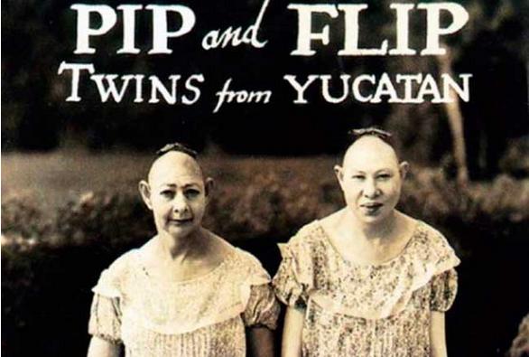 Estas antiguas fotos de artistas de circo te darán escalofríos