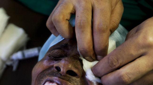 60 personas quedaron ciegas tras cirugía ocular en India