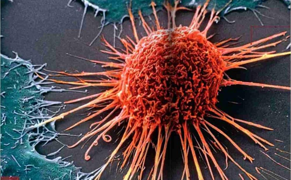 Dos de cada tres cánceres están motivados por una cuestión de pura mala suerte, según un estudio estadounidense