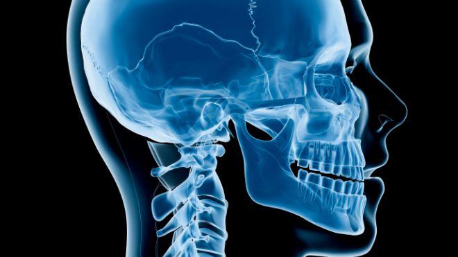 Trasplante de cabezas humanas ¿Un chiste o una realidad en el futuro cercano?