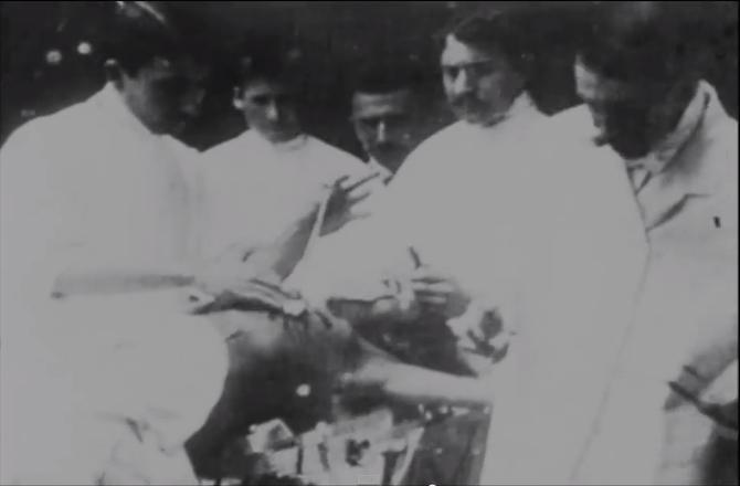 La primera grabación conocida de una cirugía y el uso de la anestesia [VIDEO]