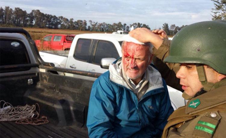 Ex militante de Patria y Libertad recibe chuecazo por bloquear ocupación de tierras mapuche