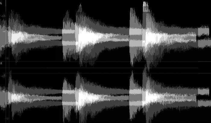 6 terroríficos audios (llamadas al 911, exorcismos, alucinaciones sonoras y Bob Esponja)