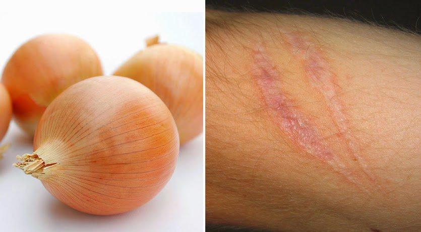 Cómo usar cebolla para tratar cicatrices