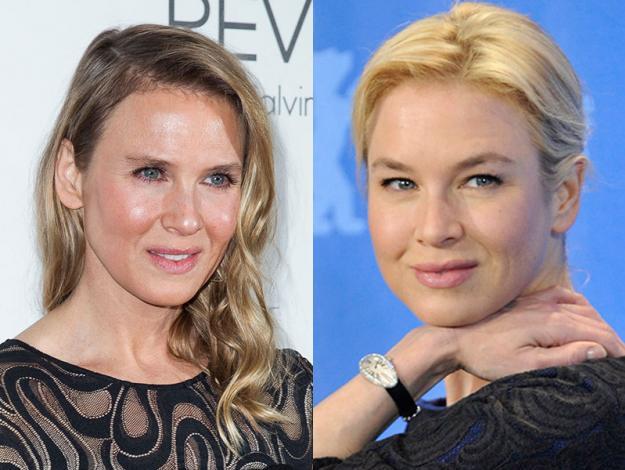 Las peores cirugías plásticas de las celebridades