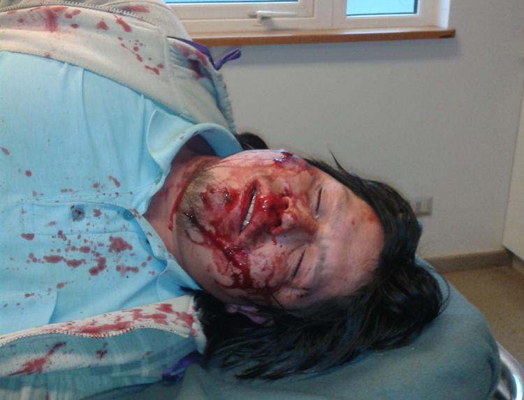 Comunero Mapuche se querella en contra de suboficial de Carabineros porque fue baleado en el rostro y espalda
