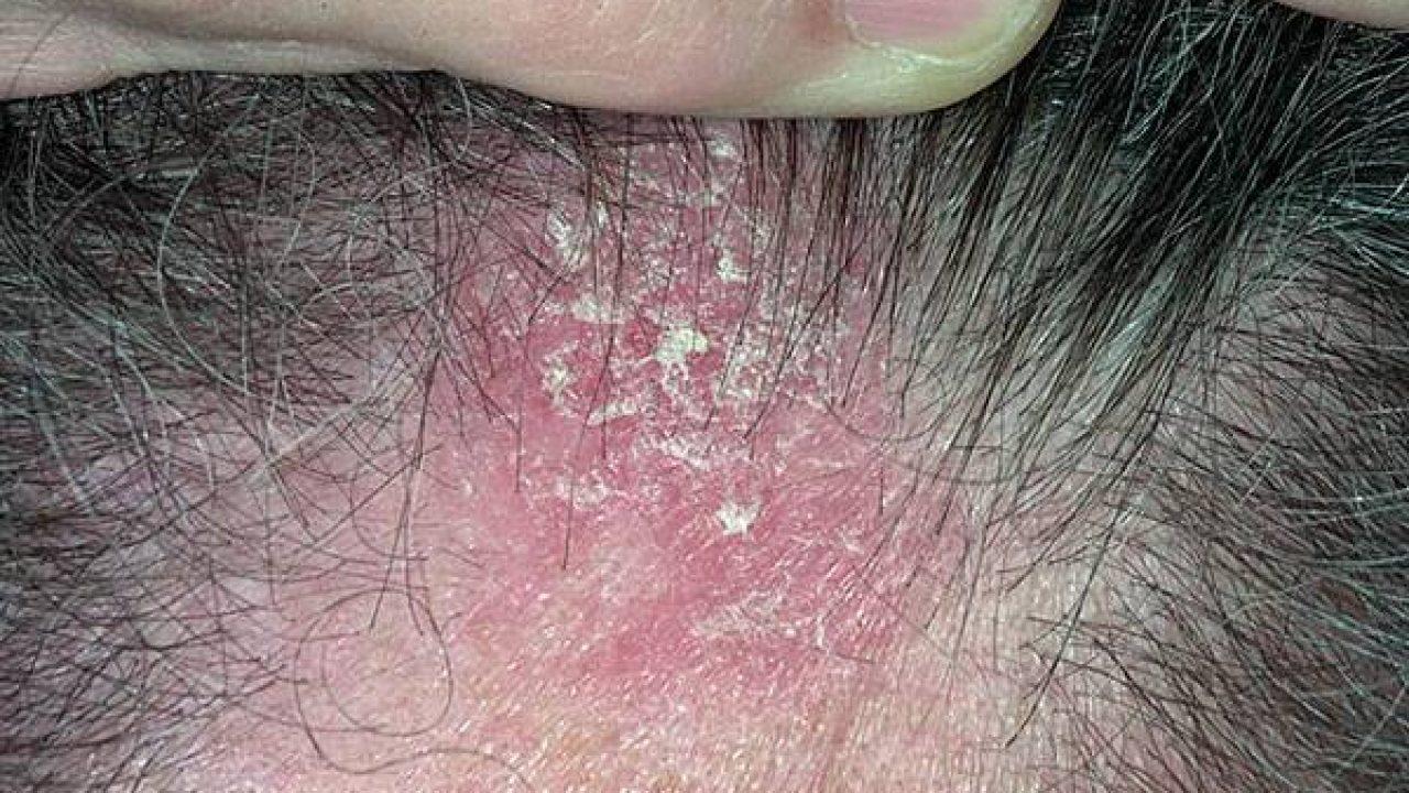 tratamientos naturales para dermatitis seborreica cuero cabelludo