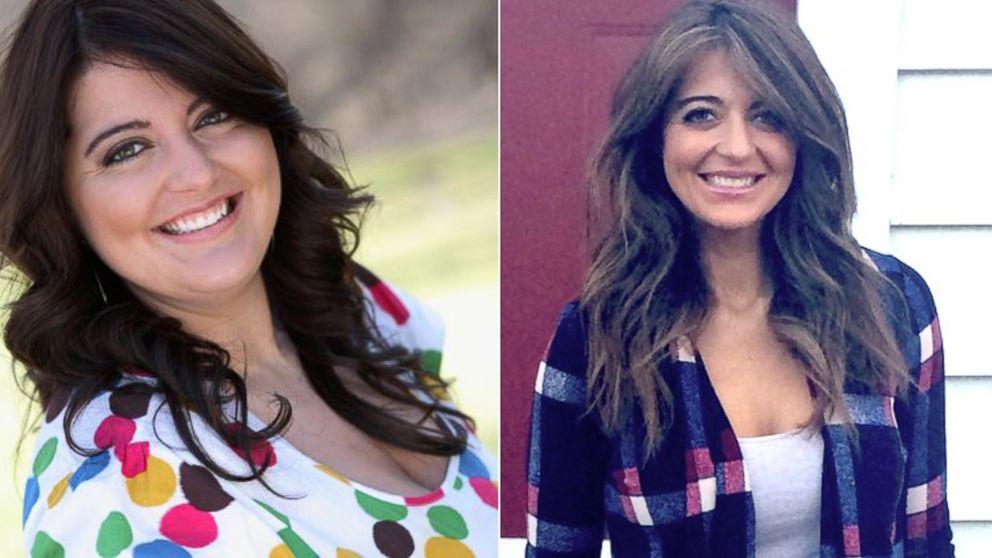 Tras perder 59 kilos, esta mujer hoy muestra sus estrías con orgullo en concursos de belleza