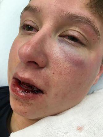 Le fracturan la mandíbula a mujer atacada en un bar