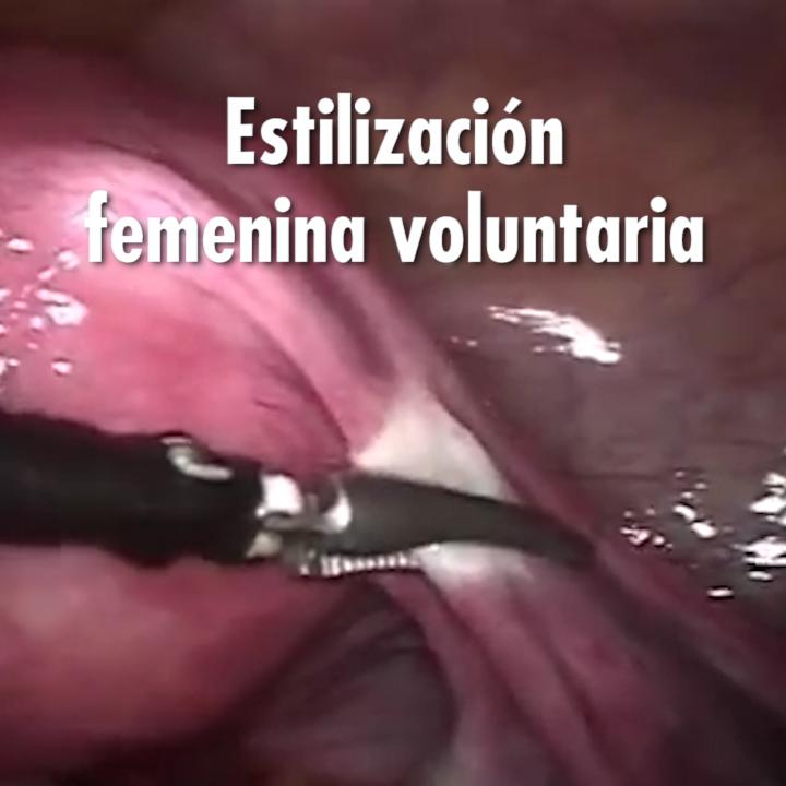 Holly Brockwell lleva años tratando de obtener una esterilización