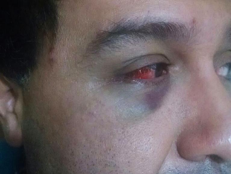 Denuncian violento ataque homófobo contra convivientes civiles. Acá el registro del momento