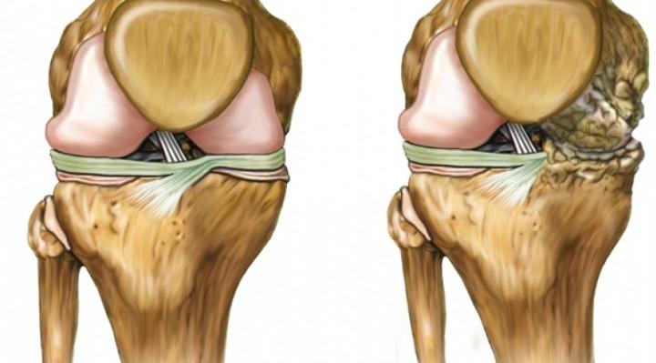 Regeneración del cartílago en cadera y rodillas, los mejores remedios naturales