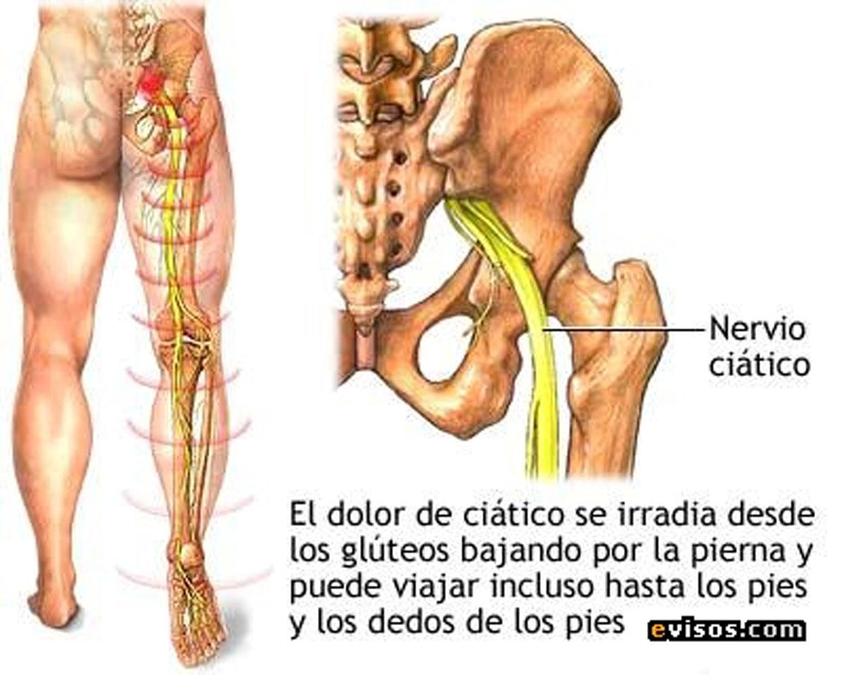 dolor en la pierna izquierda y cadera