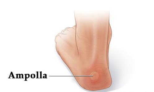 Cómo curar rápidamente las rozaduras y ampollas en los pies