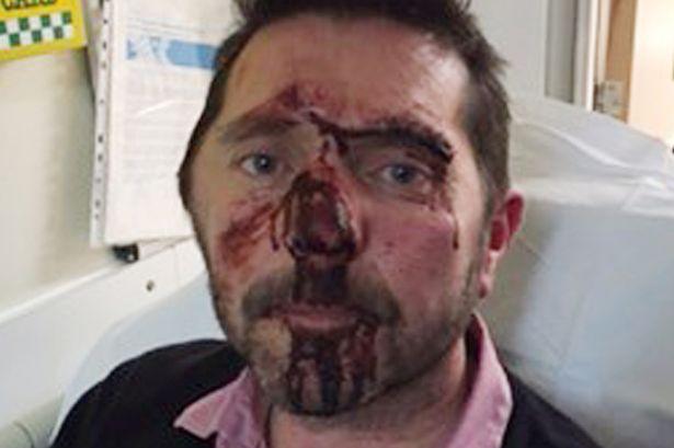 Hombre es brutalmente golpeado por ser «narigón»