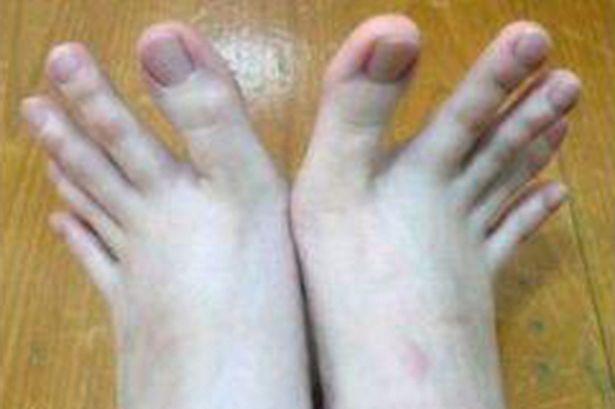Estudiante con «cuatro manos» revela cómo es tener pies con forma de manos