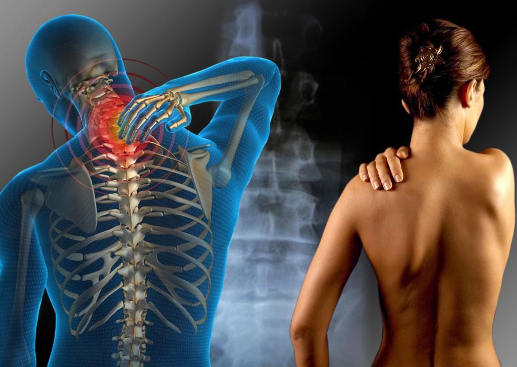 4 anti-inflamatorios naturales para combatir dolores articulares
