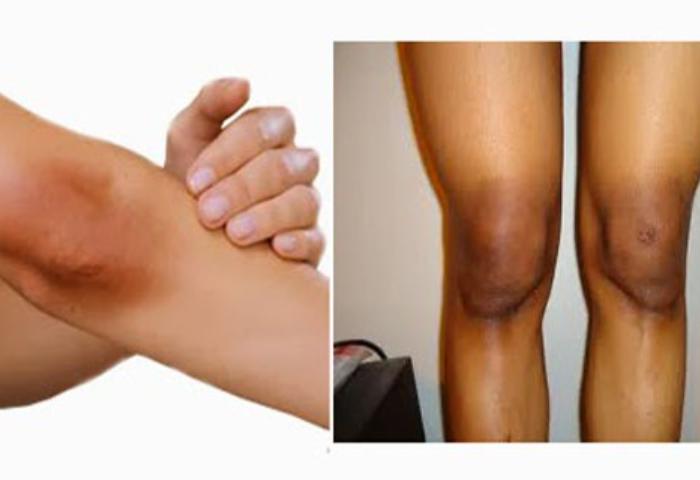 ¿Cómo deshacerse de las rodillas y los codos negros?
