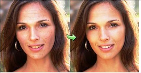 Cómo deshacerse de las arrugas en pocos días con aceite de coco