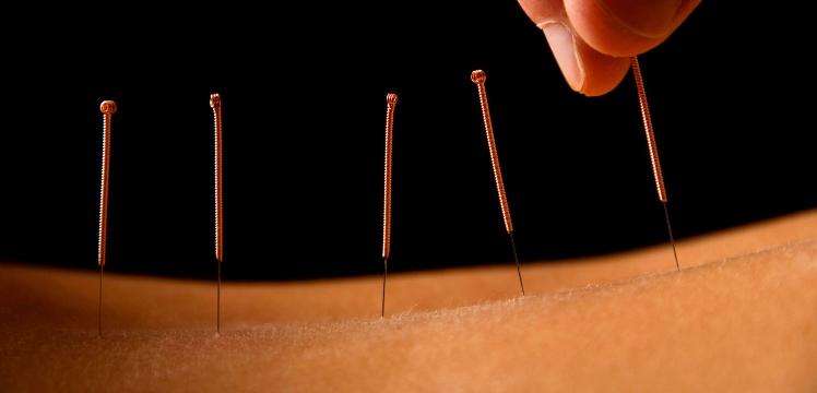 Estudio comprueba que la acupuntura reduce la hipertensión estimulando los opioides naturales