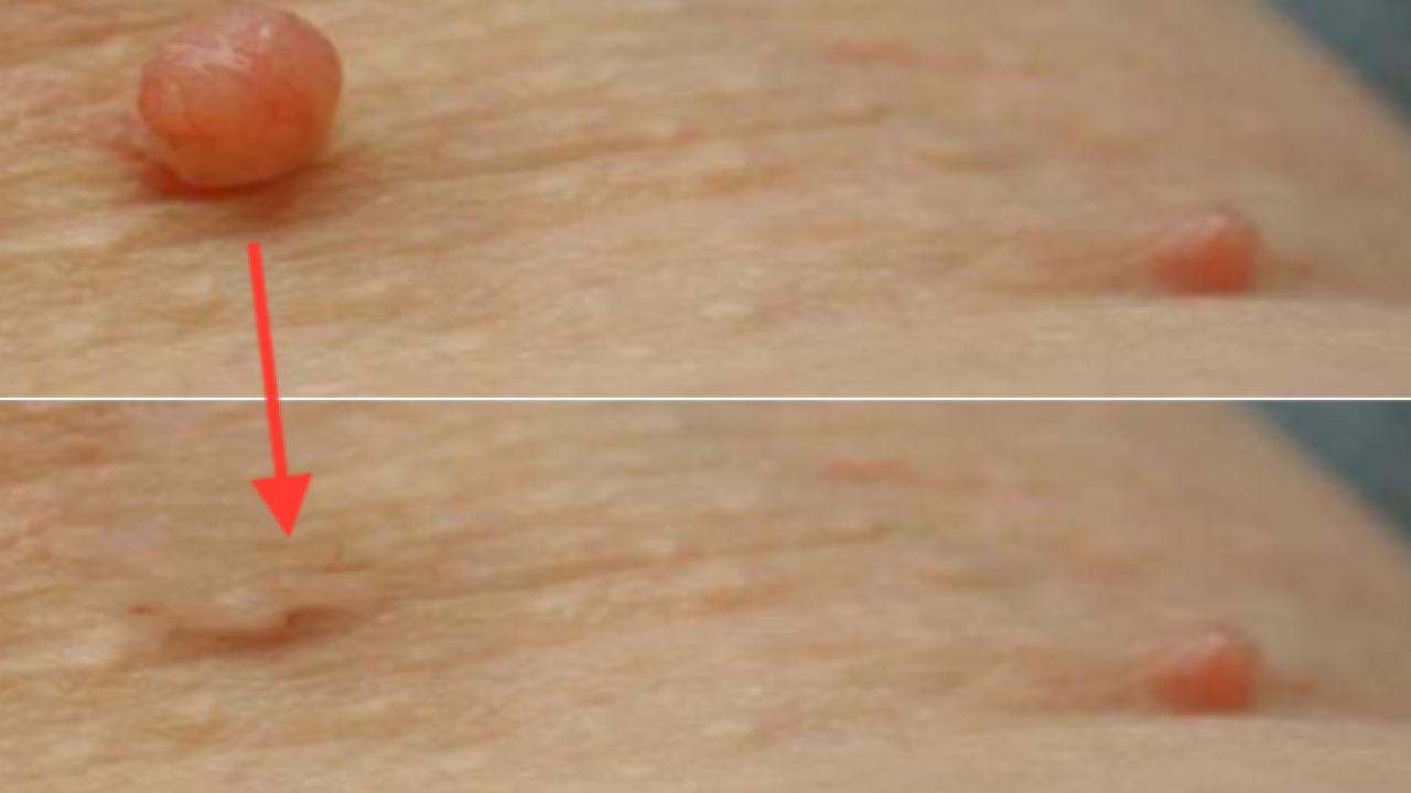 Una con eliminar hilo verruga