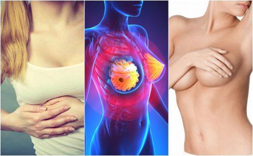 Los 9 síntomas de cáncer de mama que toda mujer debe conocer