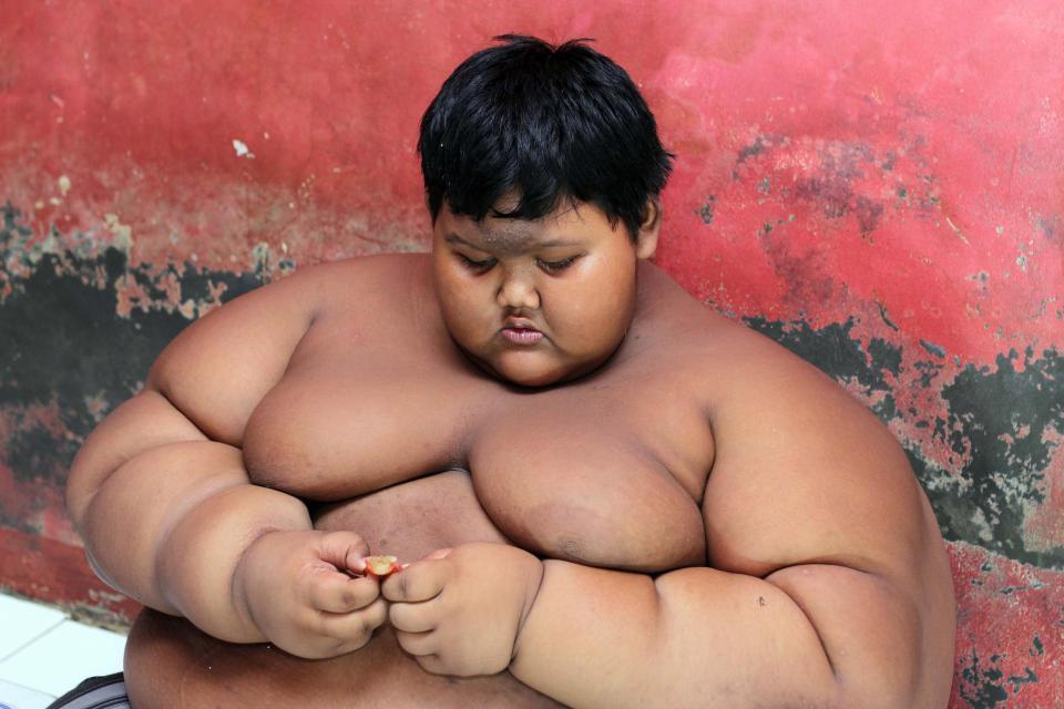 La increíble transformación del niño más gordo del mundo