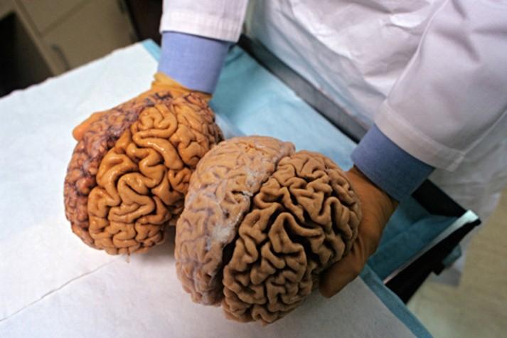 El cerebro reanimado en laboratorio: una realidad y una discusión ética
