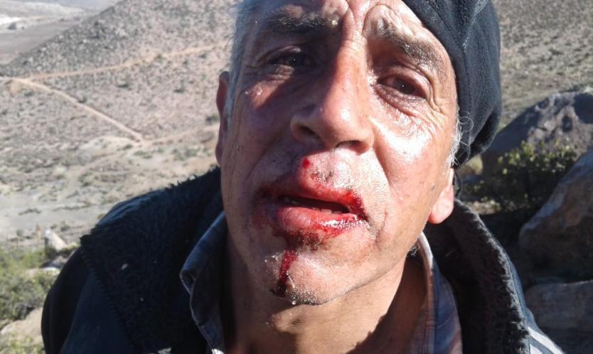Denuncian brutal represión de FFEE en manifestación contra minera del Grupo Luksic
