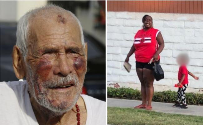 Acusan de intento de homicidio a mujer que atacó a un anciano en EE. UU.