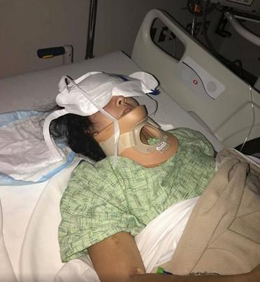 """Mujer acaba con derrame cerebral al hacer el """"Kiki Challenge"""""""