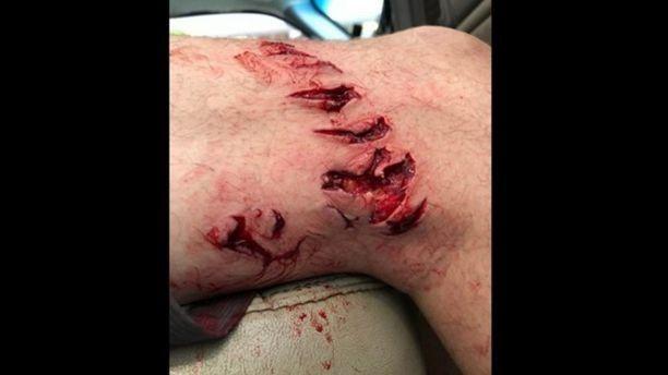 Bacteria comecarne se devora la pierna de un hombre tras ser mordido por un tiburón