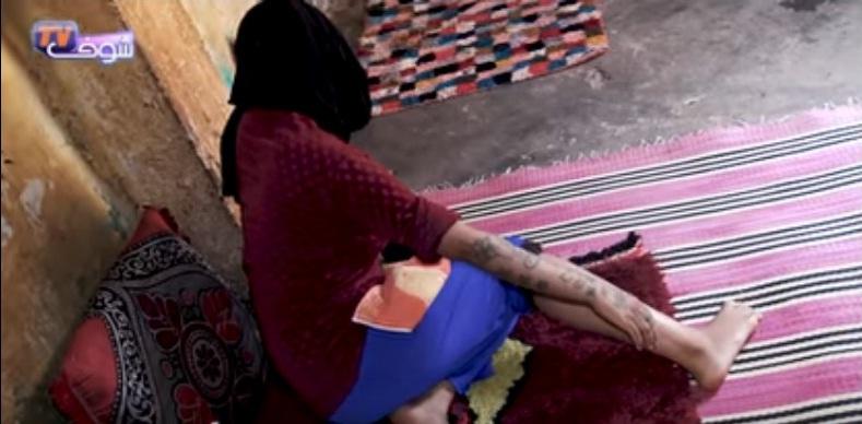 (Video) Mujer es secuestrada, violada, quemada y tatuada con palabras obscenas en Marruecos