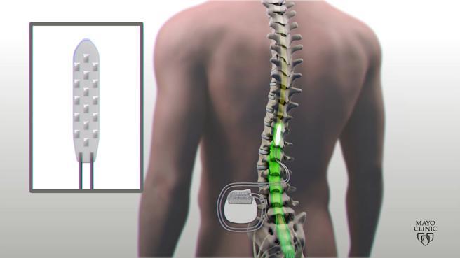 (Video) Tres parapléjicos caminan de nuevo gracias a un implante