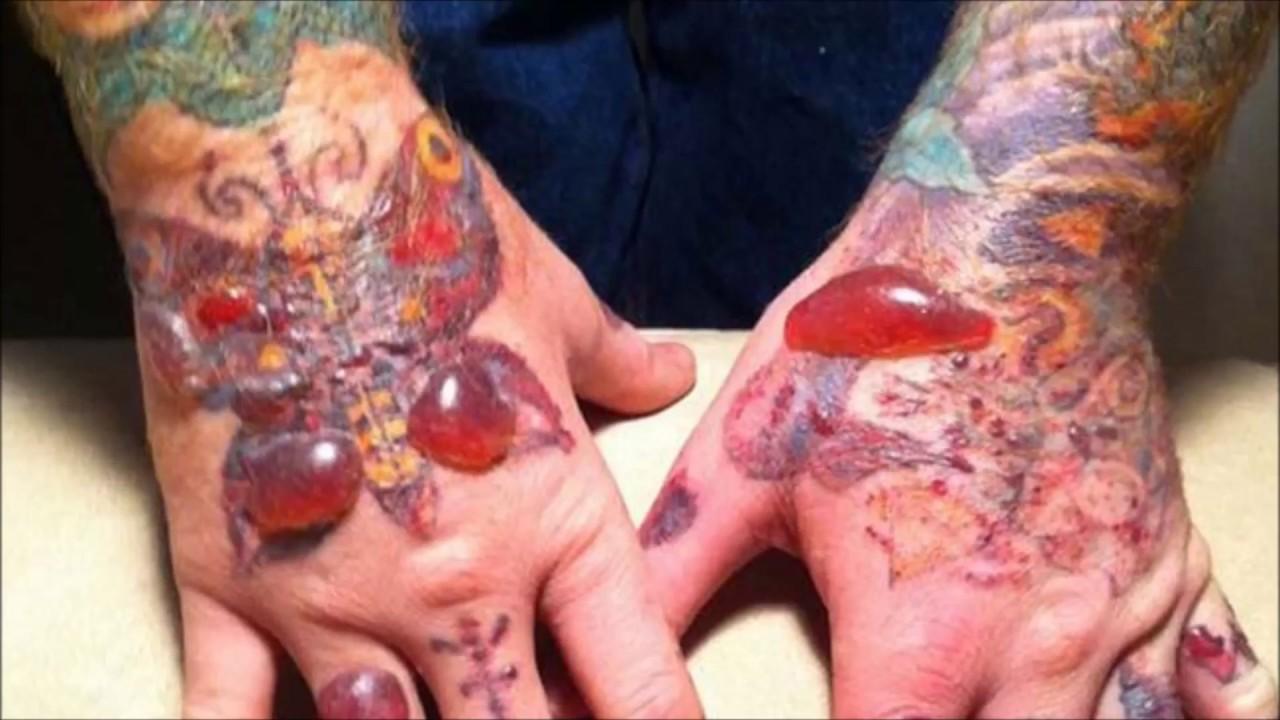 (Fotos + video) Conoce las consecuencias de los tatuajes no esterilizados según estudio científico (Fotos)