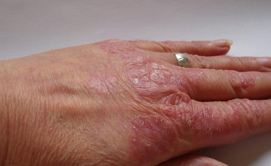 125 millones de personas en el mundo sufren de psoriasis
