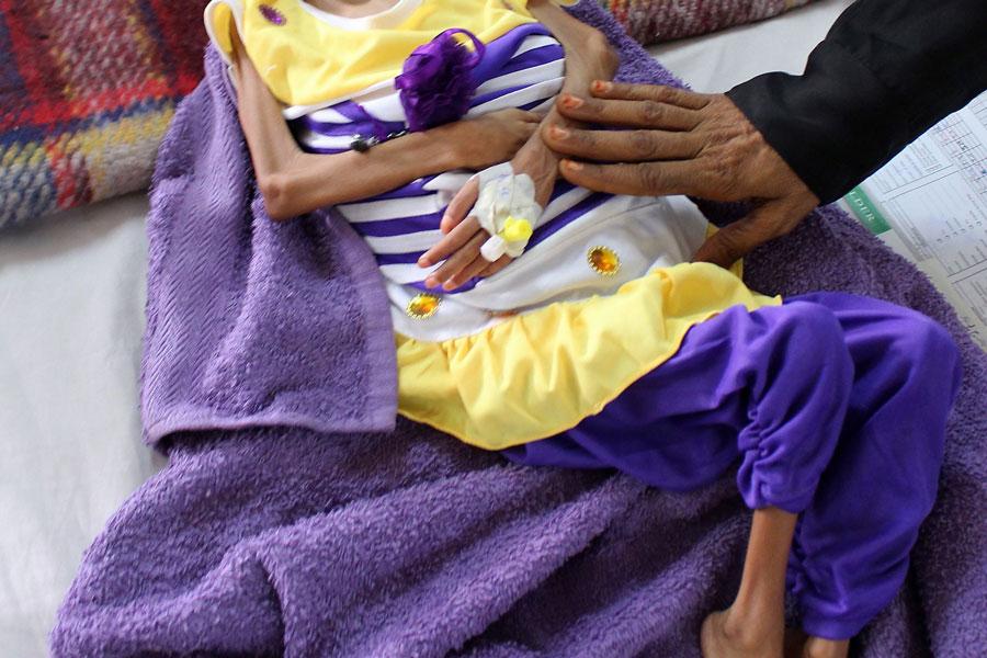 (Video) Destrucción de Yemen obliga a las familias a comer hojas para sobrevivir