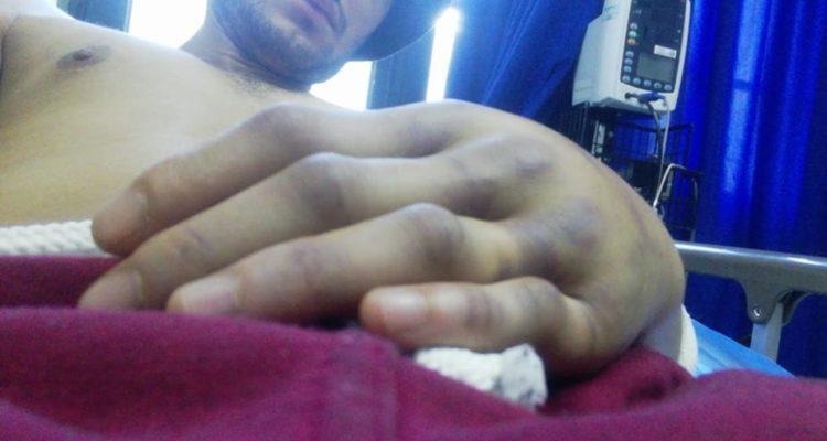 Santiago: Denuncian nuevo ataque homofóbico contra joven de 22 años en el Parque Forestal