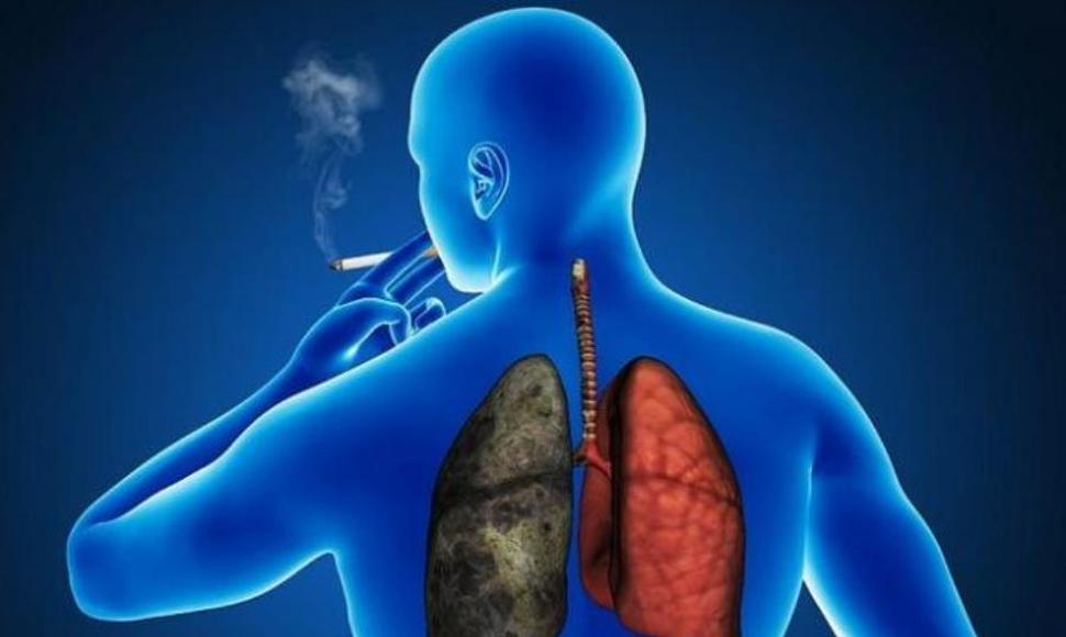 El tabaquismo primera causa del cáncer de pulmón