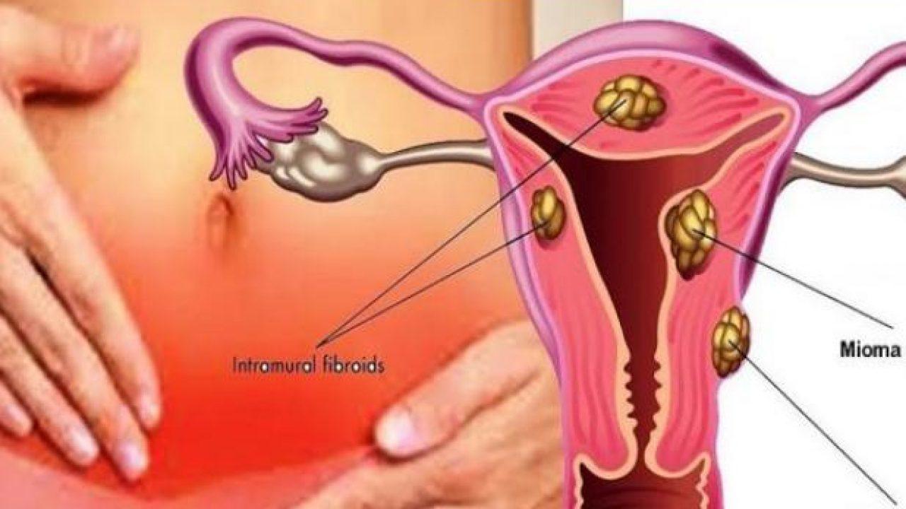 los miomas desaparecen despues de la menopausia