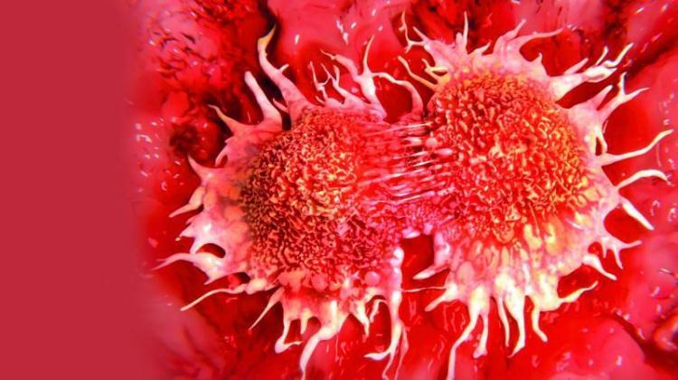 Investigadores convierten células de cáncer en grasa para evitar que se diseminen