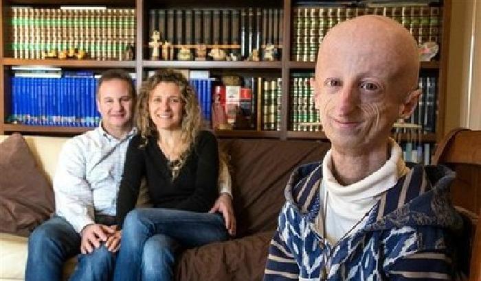 Joven con progeria se convirtió en investigador para hallar la cura a su propia enfermedad