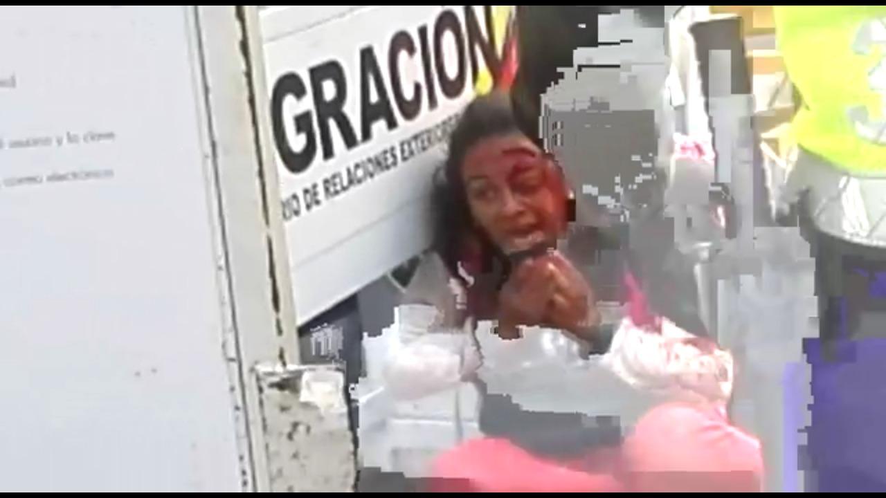"""""""Me salvé por poco"""": Testimonio de la fotógrafa chilena atropellada en la frontera colombo-venezolana"""