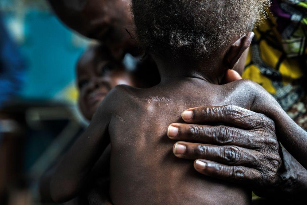 Desnutrición aguda causa estragos en la población infantil del Congo