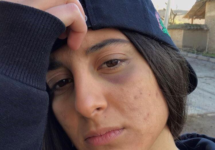 """""""Me rasguñaron con piedras el brazo"""": Joven denuncia agresión homófoba en Las Condes"""
