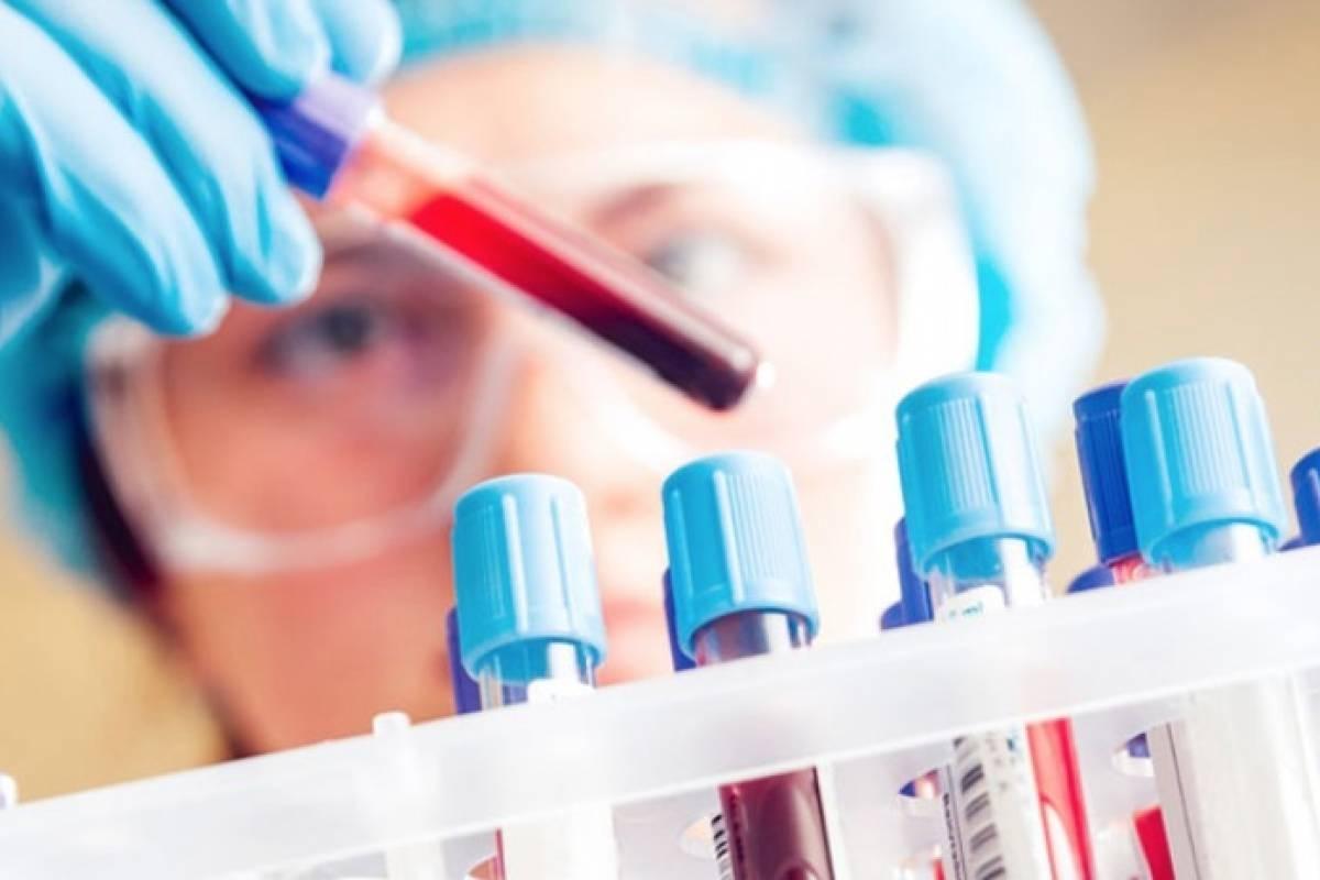 Estudio revela que muy pronto se podrá detectar el Alzheimer de una manera simple y confiable