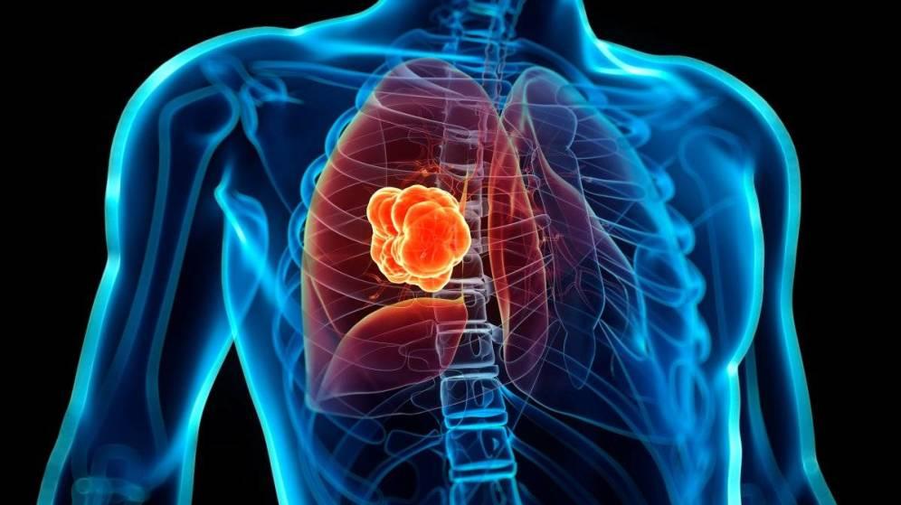 Descubren tratamiento que reduce el cáncer de pulmón y evita recaídas