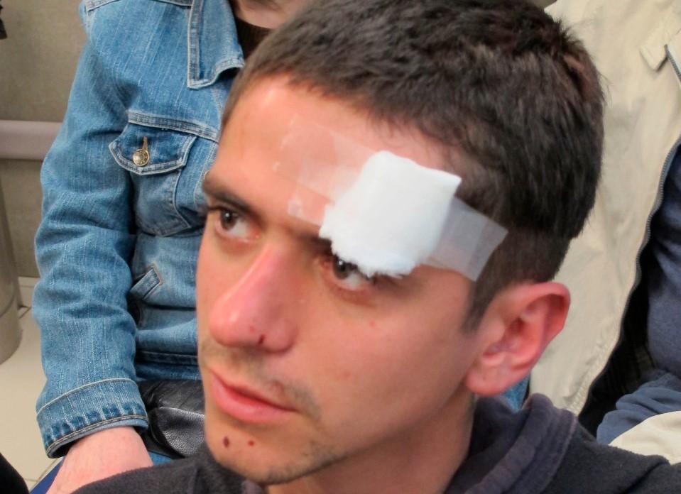 «Me reventaron el dedo»: La realidad de los heridos por uniformados en las protestas contra Piñera